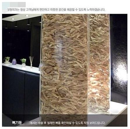 首尔江南的一家整容医院将自己割过的骨头摆出来展示